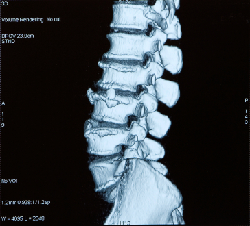 Image of spine during spinal decompression